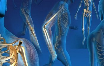 Orthopedic-Replacement-Market-740x380