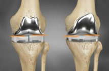 knee replacement market