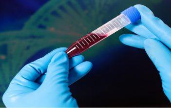 Hemophilia A and B Therapeutics Market