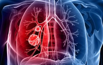 Lung Cancer Diagnostic Market Research
