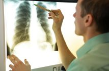 Global Lung Injury Clinical Trials Market