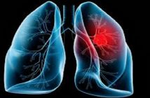 Lung Injury Global Clinical Market Research report