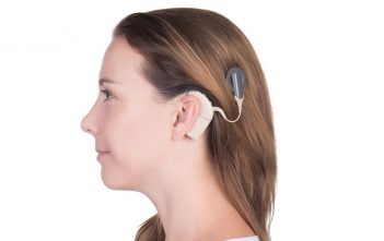 Brazil Hearing Implants Market