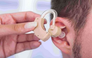 France Hearing Implants Industry