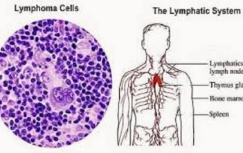 Lymphoma-image