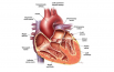 United Kingdom Prosthetic Heart Valves Market