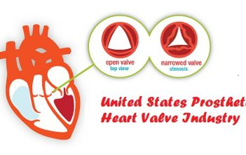 United States Prosthetic Heart Valve Industry