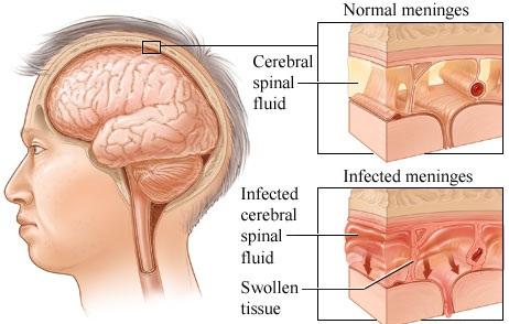 Pneumococcal Meningitis Overview