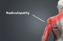 Global Radiculopathy Market
