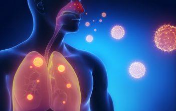 Pseudomonas Aeruginosa Infection