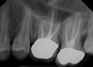 Russia Dental Imaging Market