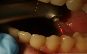 canada dental laser industry