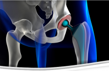 orthopedics joint replacements implants