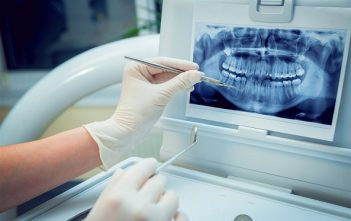 France Dental Imaging Market