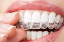 Global Invisible Orthodontics Market