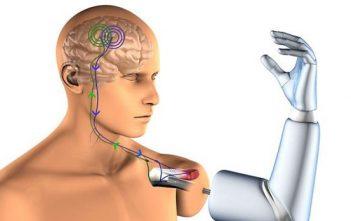 Robotic Prosthesis Market
