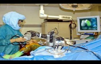 Global Orthopedic Surgical Robots Market