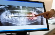 Global Dental Imaging Technology Market Research Report