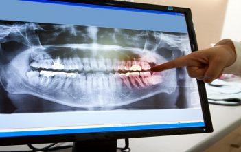 Global Dental Imaging Technology Market Research Report