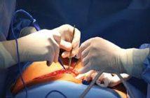 Global Minimally Invasive Surgery Video Column Market
