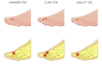 Global Hammertoe Market Research Report