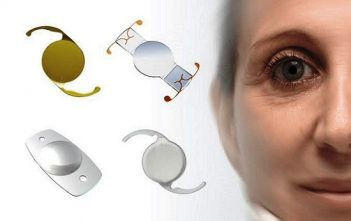 Global Intraocular Lens Market