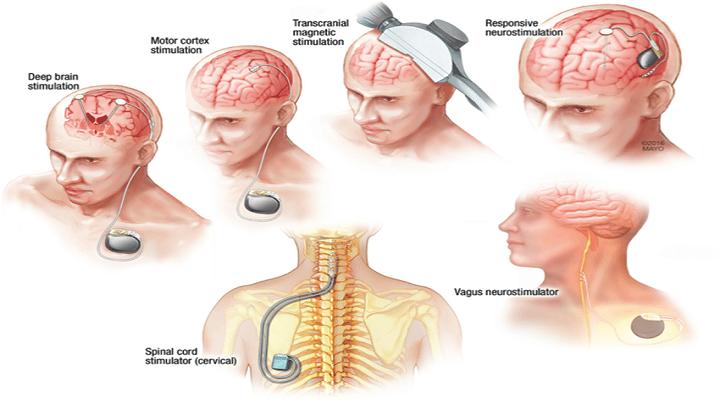 Neuromodulation Devices (Neurology)-Global Market