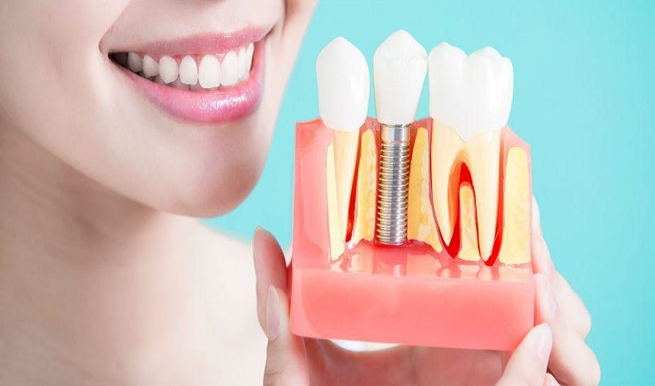 Global Dental Implants and Prosthesis Market