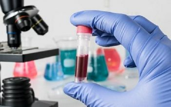 Global Medical and Diagnostic Laboratory Services Market