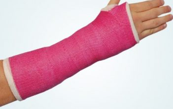 Casting and Splinting Products Market