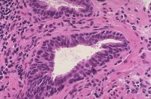 Global Prostatic Intraepithelial Neoplasia Market