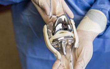 Knee Replacement Market