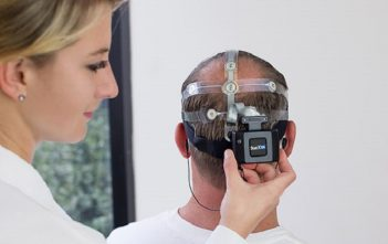 Global Brain Monitoring Market Research Report