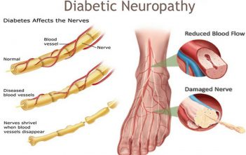 Global Diabetic Neuropathy Market