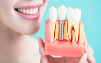 Global Dental Implants and Prosthesis Market