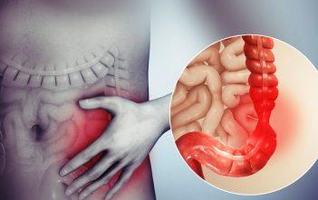 Global Irritable Bowel Syndrome Treatment Market
