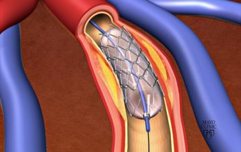 Global Coronary Stent Market