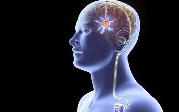 Global Deep Brain Simulation Devices Market