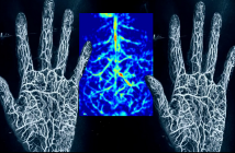 Global Photoacoustic Imaging Market