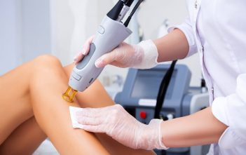 Global Laser Hair Removal Market