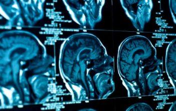 Global Medical Imaging Outsourcing Market