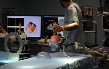 Asia Pacific Neurosurgical Robotics Market