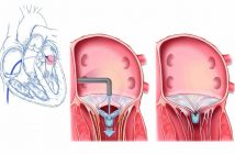 Global Transcatheter Mitral Valve Repair and Replacement Market