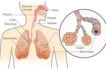 Respiratory Tract infections (RTIs) Treatment