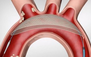 Global Cerebral Embolic Protection Devices Market