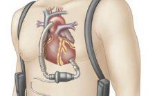 Global Heart Pump Device Market